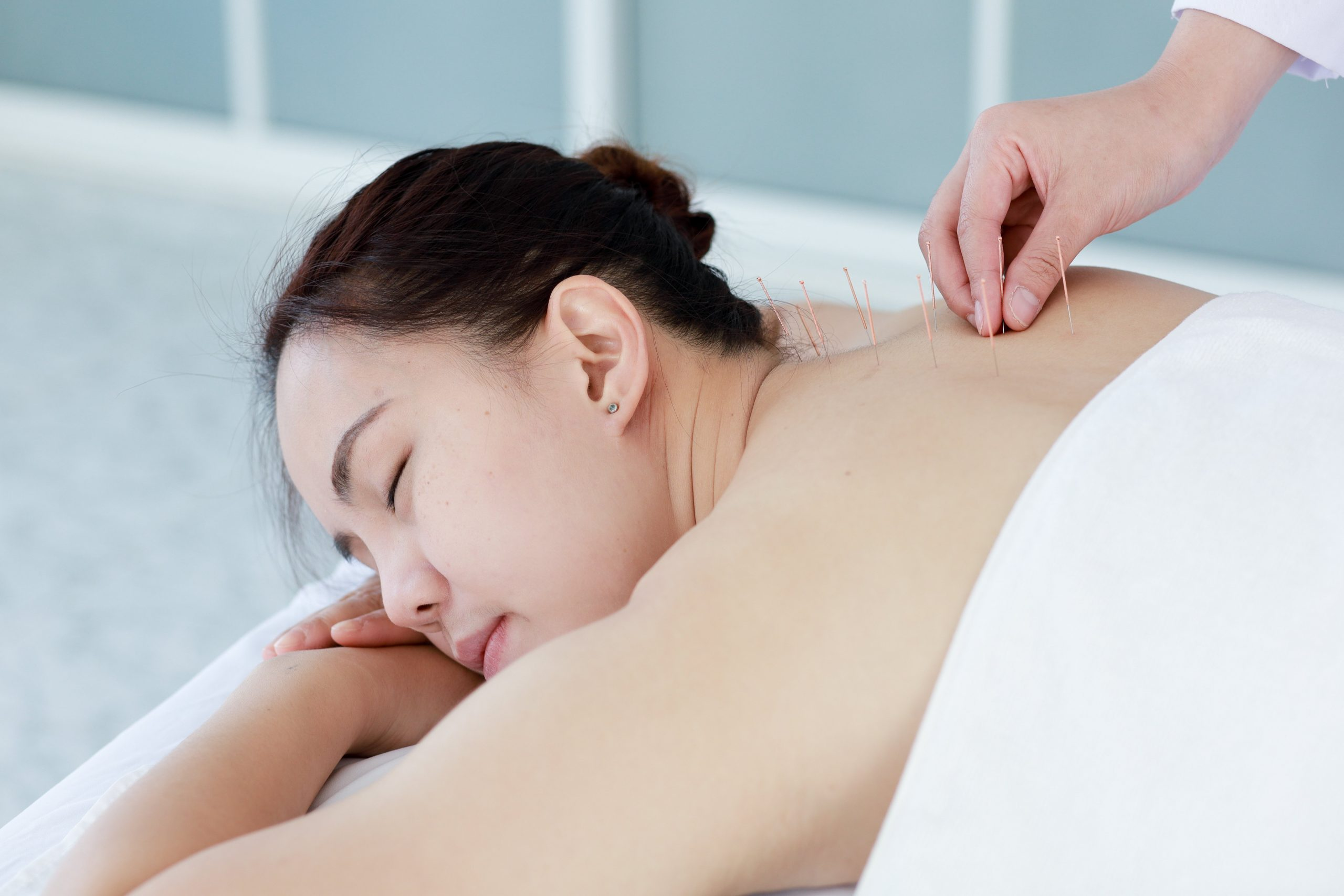acupuncture woman relaxed