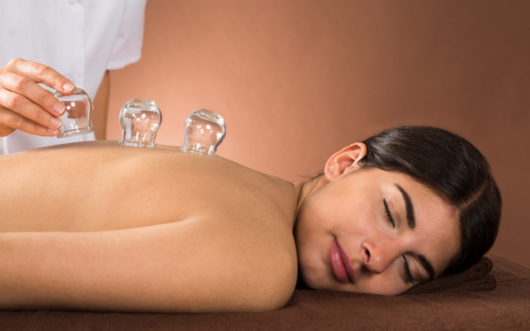 Everything You need to Know about Cupping