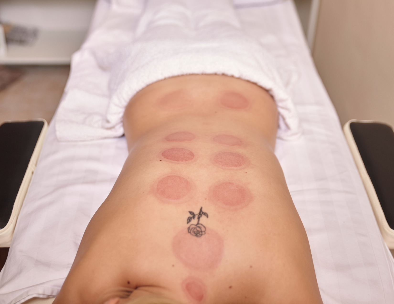 cupping discoloration